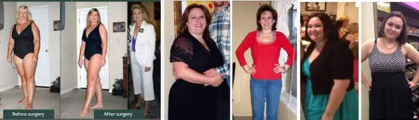 Gastric Sleeve Surgery to Kick Start Weight Loss