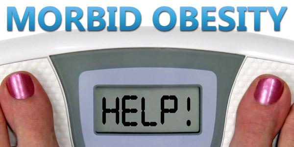 Morbid obesity help solution
