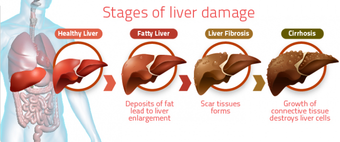 weight loss fatty liver